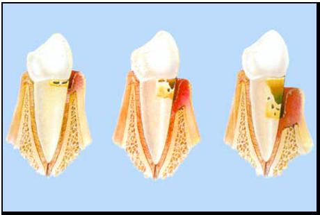 Javier-Sanz-Acha-Medico-dentista-San-Sebastian-Donostia-Tratamientos-Tratamientos-Encias