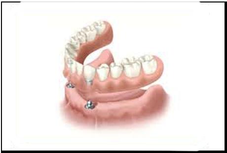 Javier-Sanz-Acha-Medico-dentista-San-Sebastian-Donostia-Tratamientos-Tratamientos-Protesis